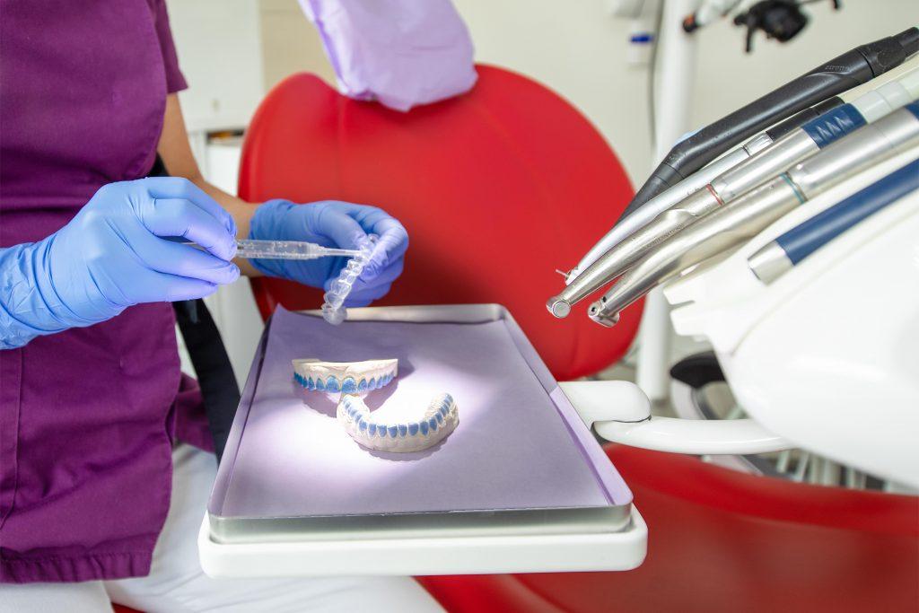 tanden bleken met esthetische tandheelkunde