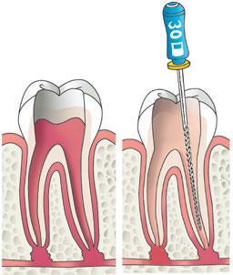 illustratie van een wortelkanaal behandeling